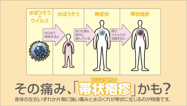 初期 帯状 診断 疱疹